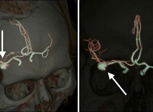 последствия после операции 1