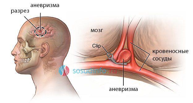 последствия после операции 2