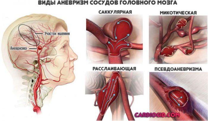 последствия после операции 3
