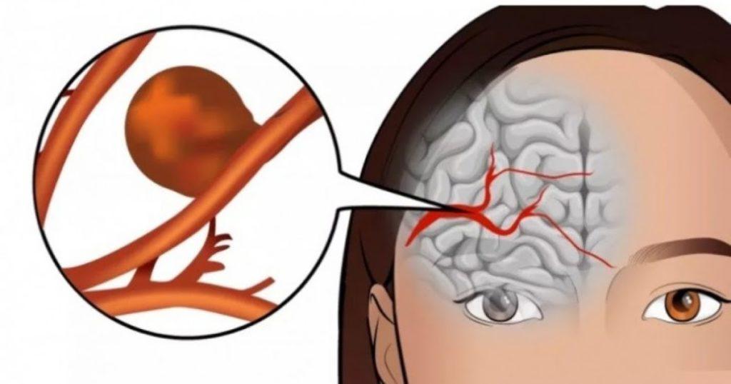 последствия после операции 4
