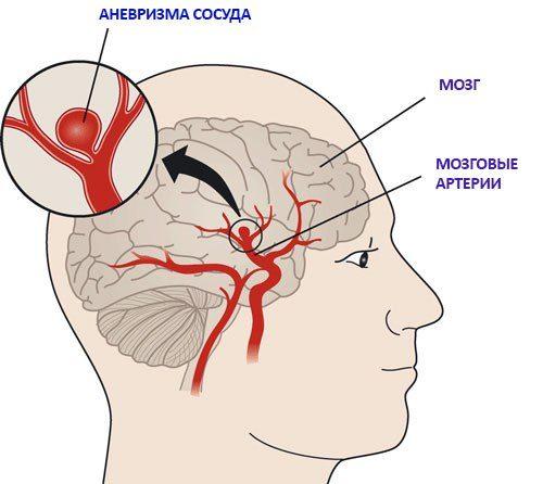 последствия после операции 5