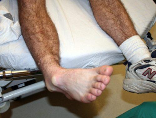 Нога после инсульта что делать 1