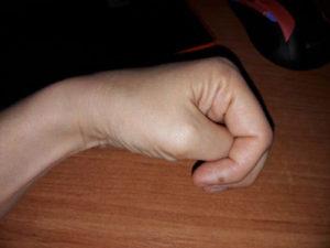 рука после инсульта 1