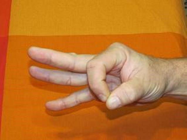 рука после инсульта 3