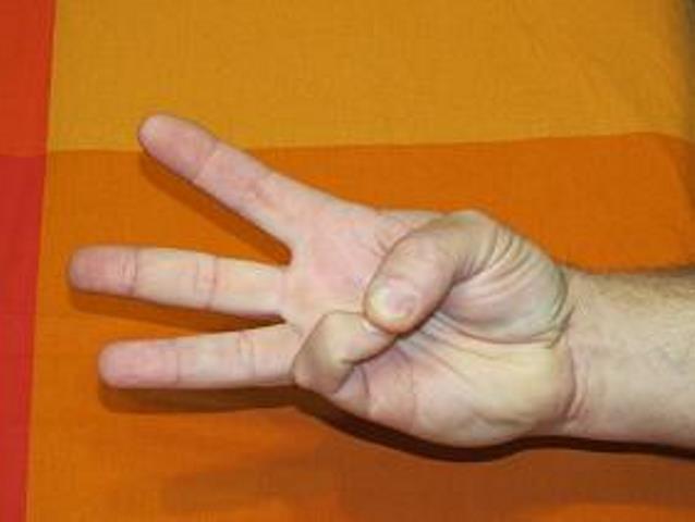 рука после инсульта 4